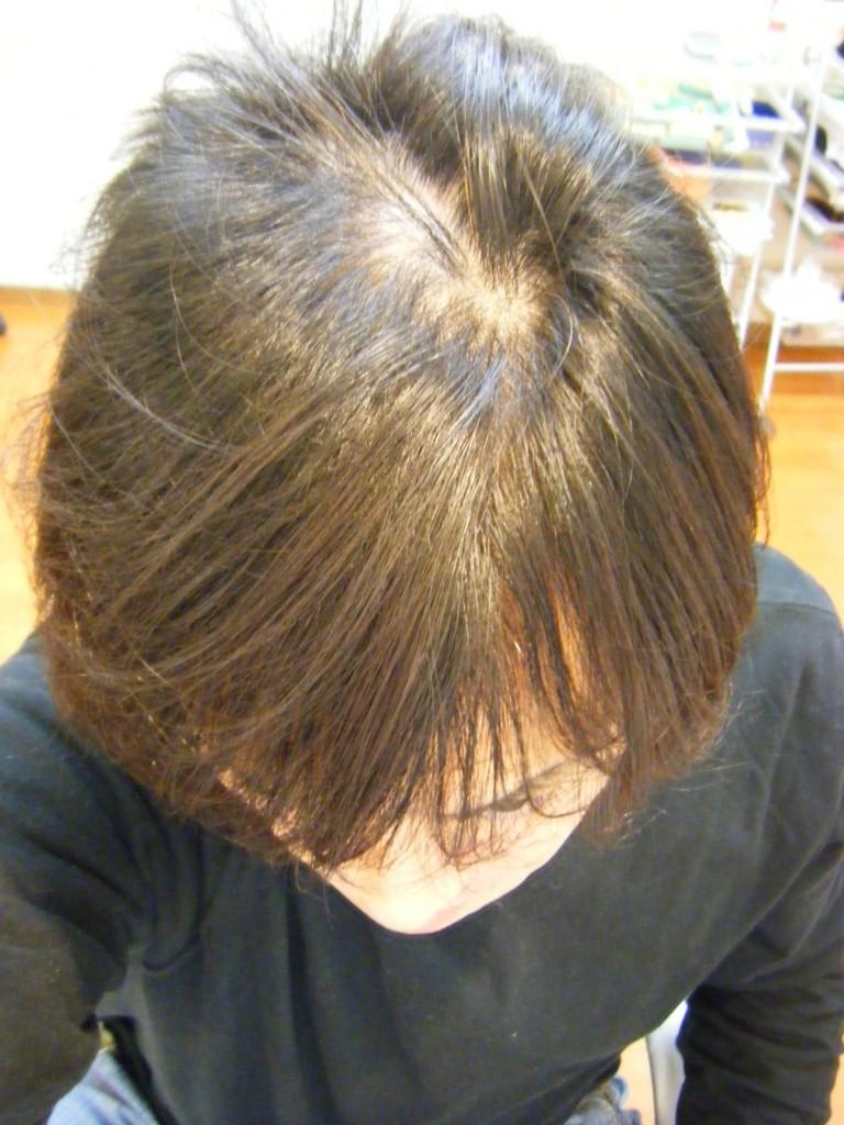多発型円形脱毛症 (筆者本人)